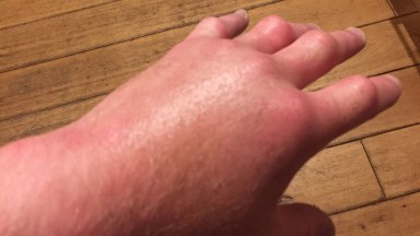Paul Hanagan: hand is swollen 'like a mini football'