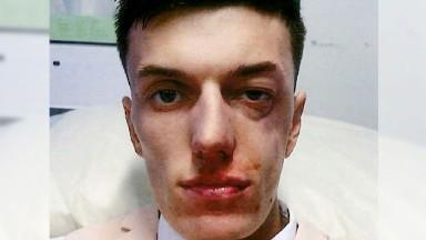 Gloucestershire Police: Appeal following assault at The Festival, Cheltenham Racecourse Racegoer assaulted at Cheltenham Festival