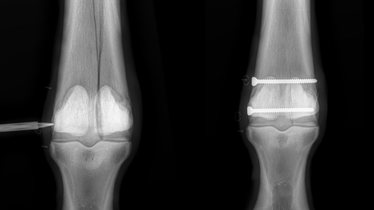 Surgery update: an x-ray of Amhran Na Bhfiann's fetlock before the procedure on the left, alongside an x-ray after two pins were inserted on the right