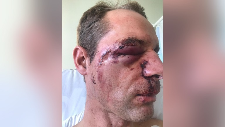 Danny Cook: suffered a broken nose, fractured eye socket and cheekbone in fall